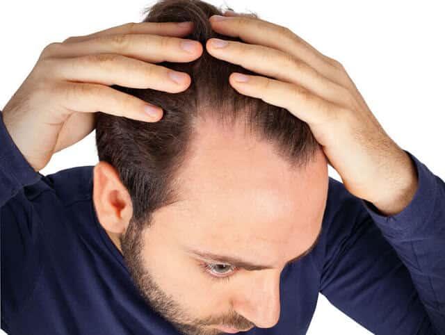 Homme souffrant d'alopécie androgénétique