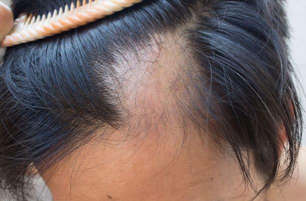 Femme souffrant d'une alopécie cicatricielle