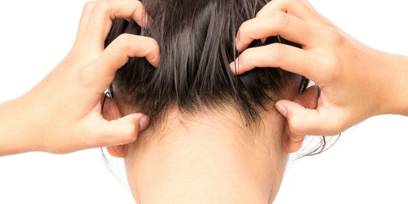 Femme souffrant d'une maladie inflammatoire du cuir chevelu