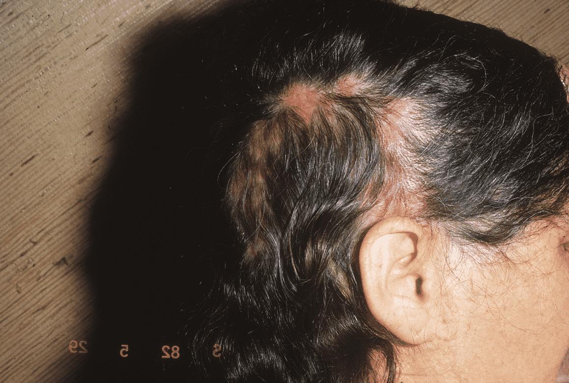 Femme souffrant de lupus érythémateux discoïde