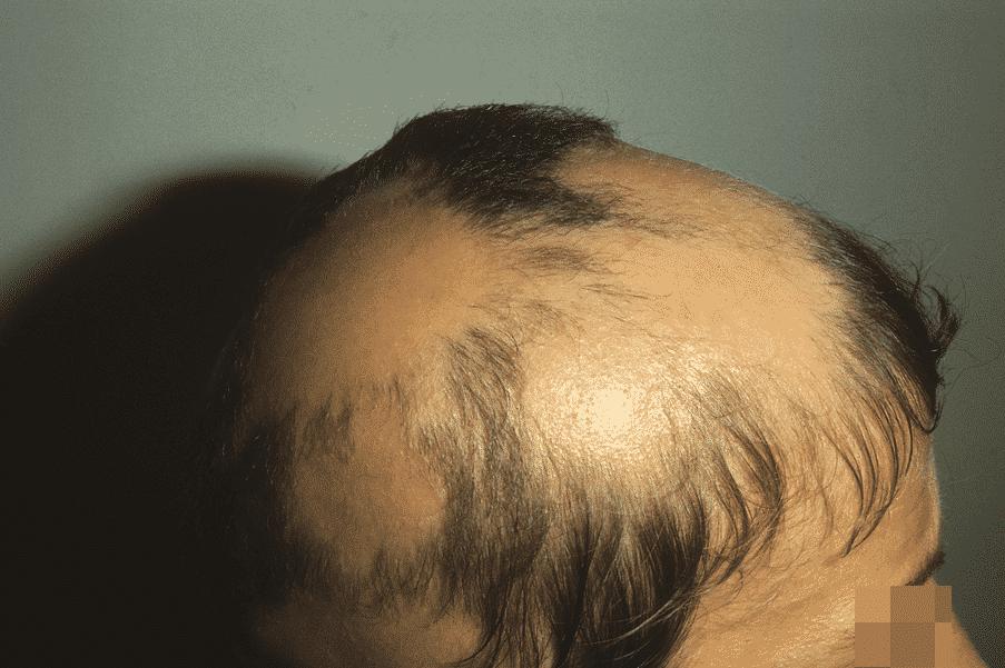 Patient souffrant de pelade