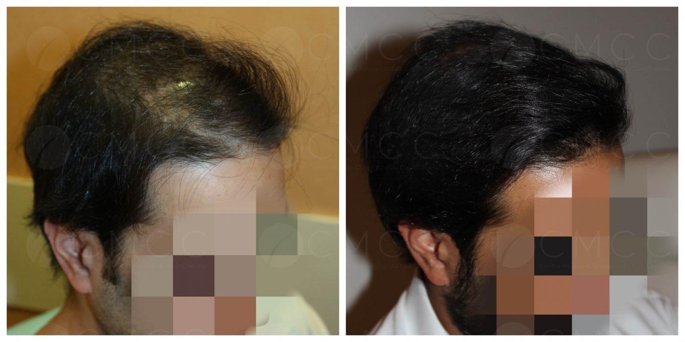 Résultat greffe de cheveux FUE avec rasage total sur un homme