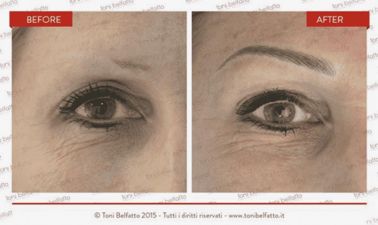 Résultat dermopigmentation des sourcils sur une femme