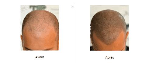 Résultat d'une dermopigmentation sur un homme aux cheveux ras