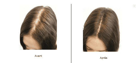 Résultat d'une dermopigmentation sur une femme