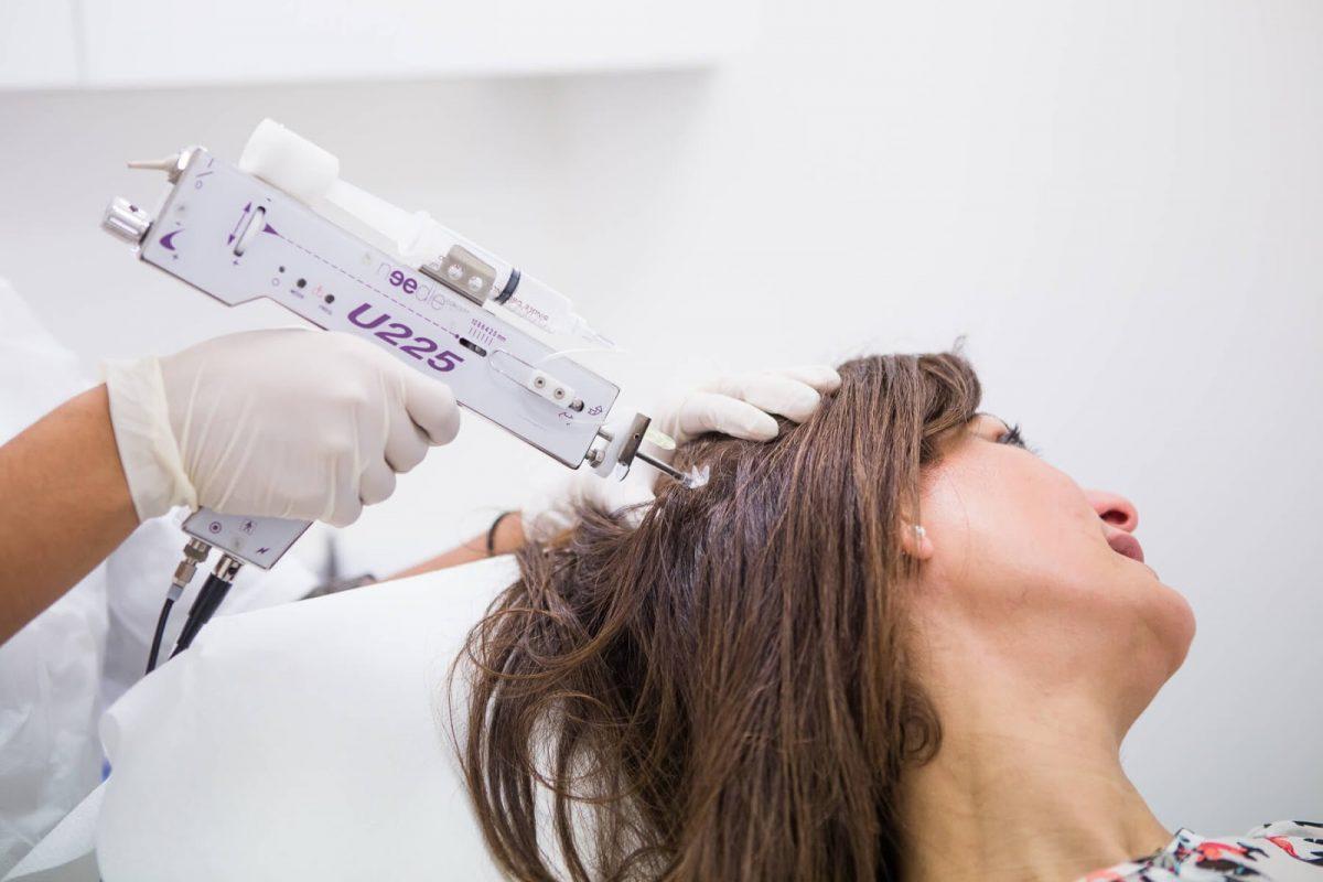 Patiente en train de faire une mésothérapie capillaire