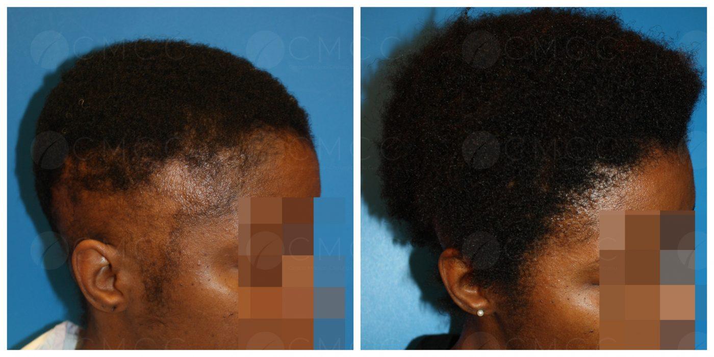 Résultat greffe sur cheveux afro