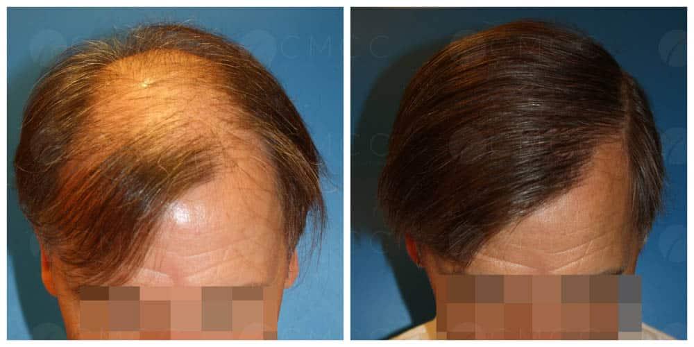 Résultat greffe FUT à cheveux longs sur un homme
