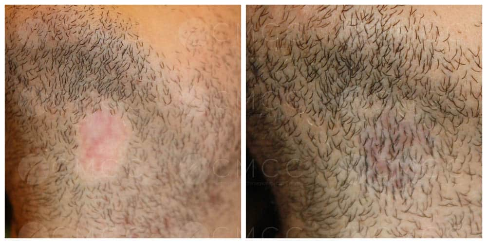 Résultat greffe de barbe