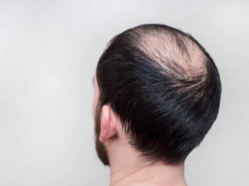 Jeune homme souffrant d'une alopécie androgénétique