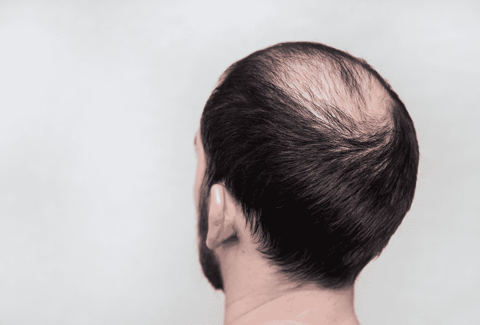 cmccparis_alopecieandrogenetique