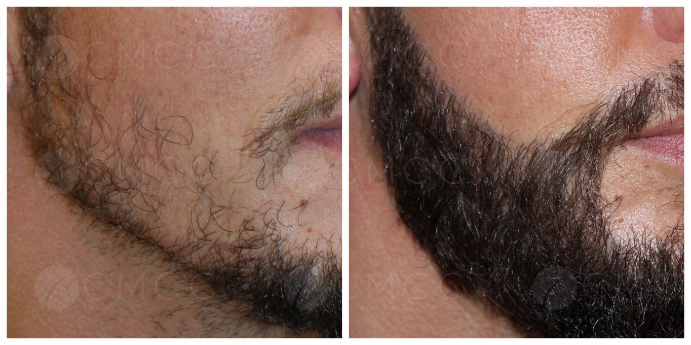 cmcc_greffe de barbe