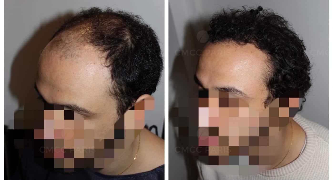 cmcc paris greffe de cheveux