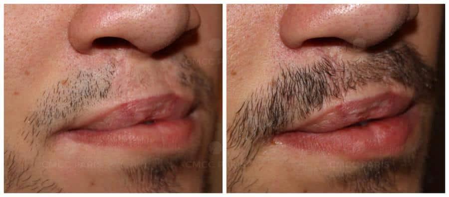implentation de 110 poils de moustache