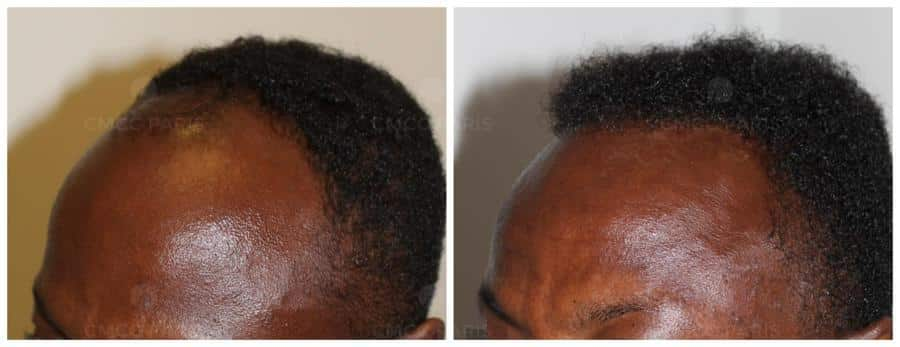 implantation de 1200 cheveux
