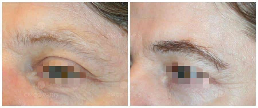 implantation de 190 poils de sourcil