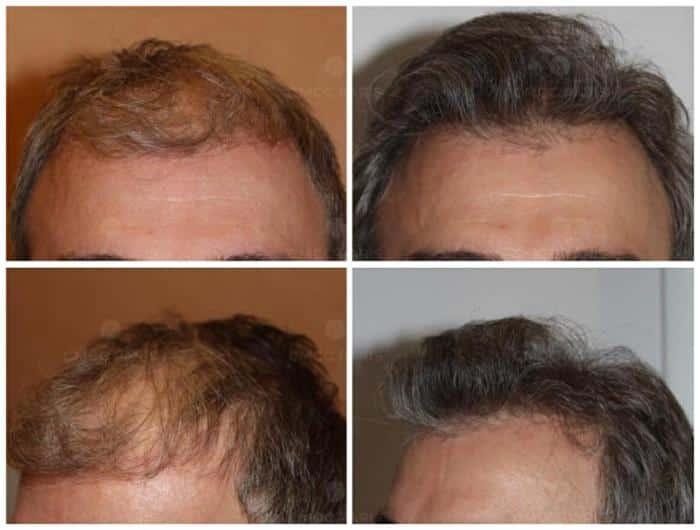 implantation de 2000 cheveux - golfes, ligne frontal, vertex
