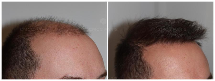 implantation de 2050 cheveux