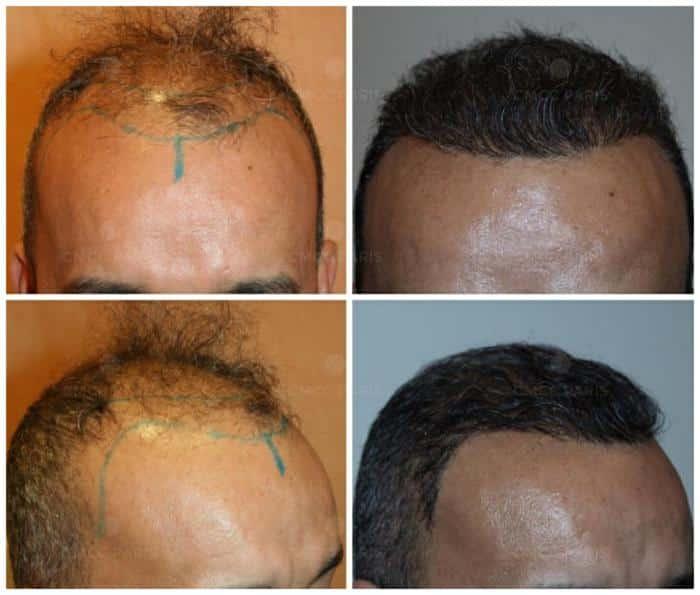 implantation de 2000 cheveux - golfes ligne frontale vertex