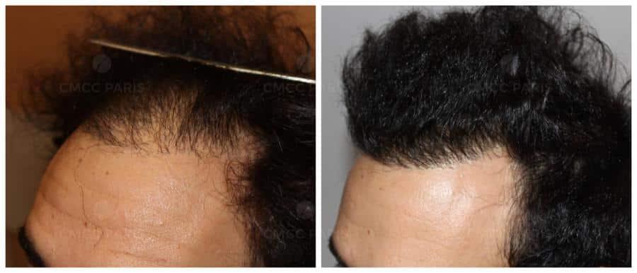 implantation de 2210 cheveux