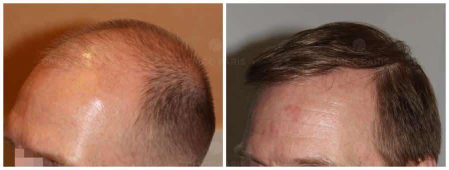 implantation de 2500 cheveux
