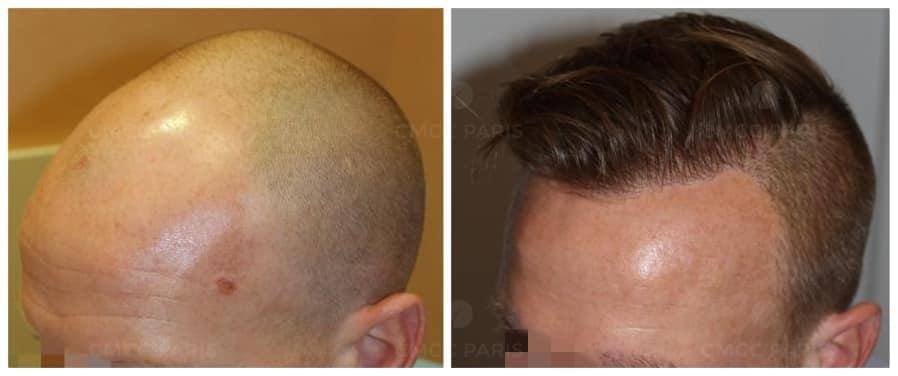 implantation de 3000 cheveux