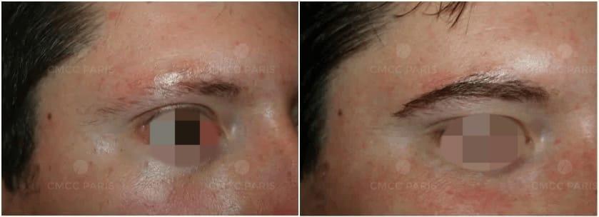 greffe de sourcils - implantation poils