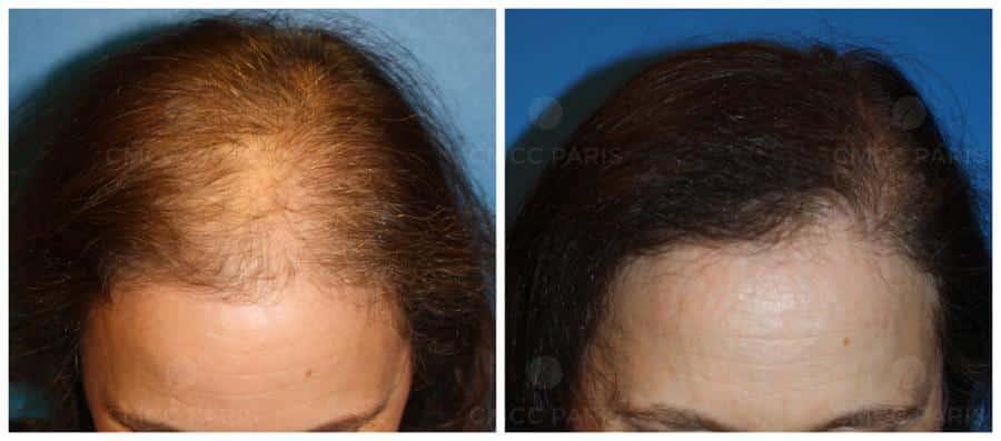 greffe de cheveux - implantation de 1500 poils