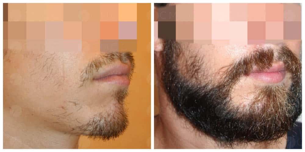 greffe de barbe - implantation de 1500 poils
