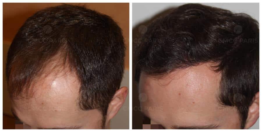 implantation de 1700 cheveux en frontal