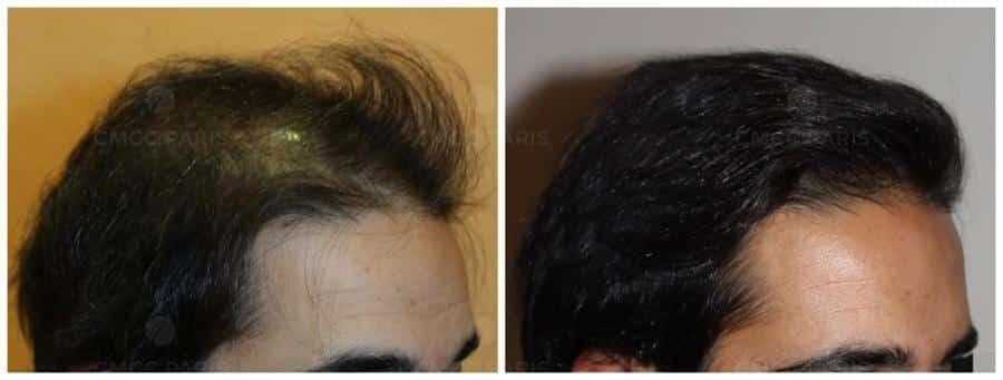 implantation de 2000 cheveux en frontal