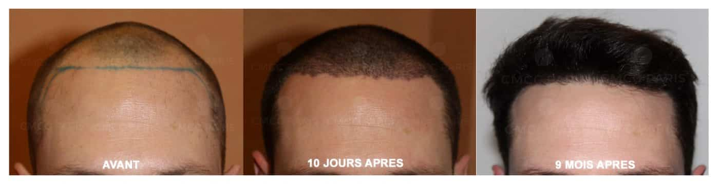 greffe de cheveux - implantation de 2000 poils