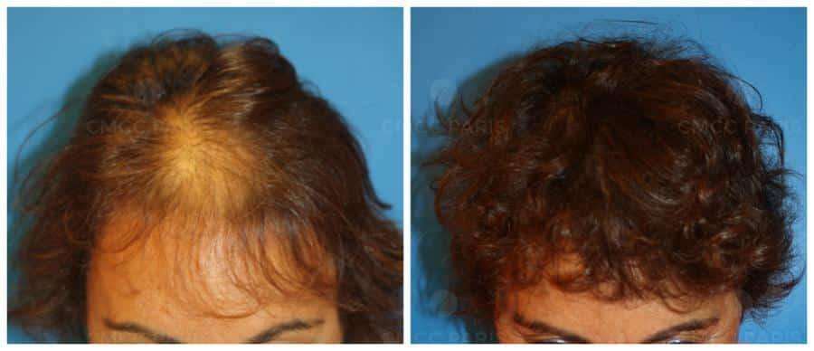 greffe de cheveux - implantation de 800 poils