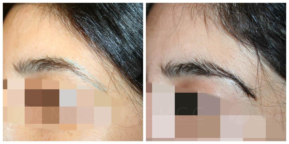 greffe de sourcils - implantation 90 poils