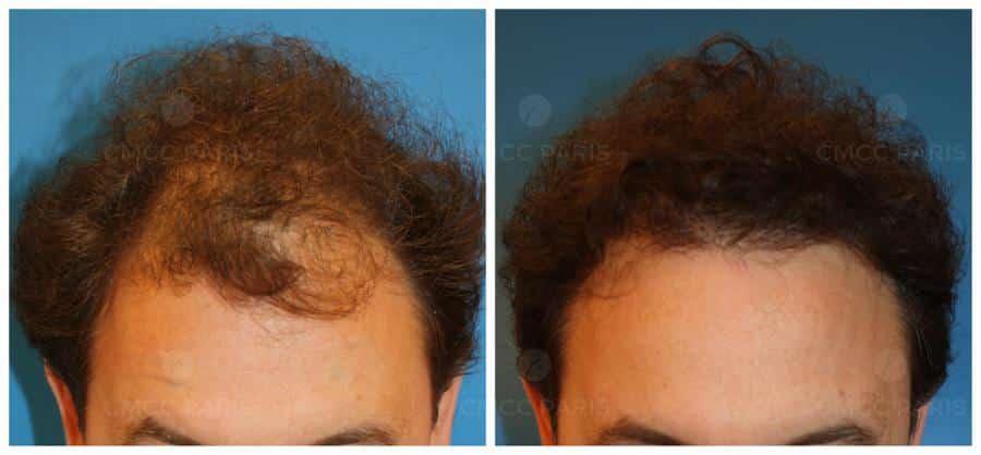 greffe de cheveux - implantation de 9400 poils