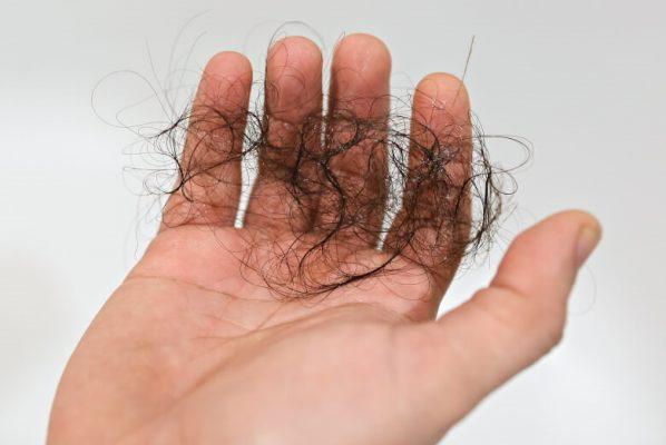 cheveux dans les mains d'un homme souffrant d'effluvium télogène sans dégarnissement