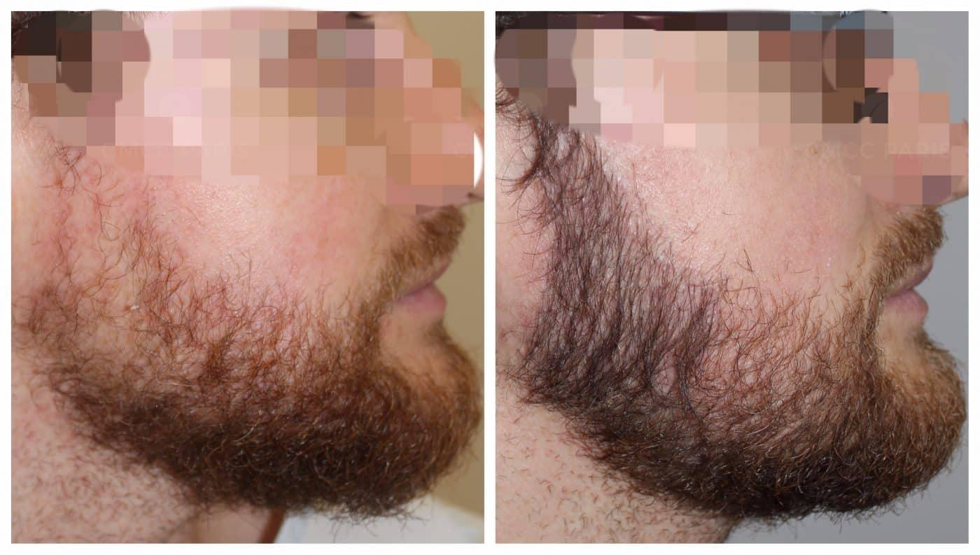 greffe de barbe - implantation de 800 poils