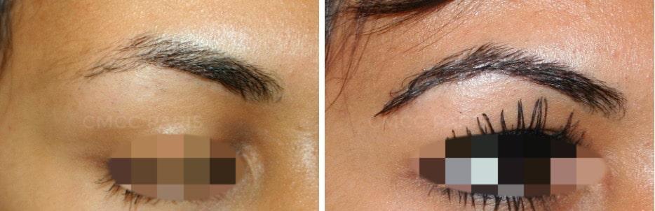 greffe de sourcils - implantation de poils