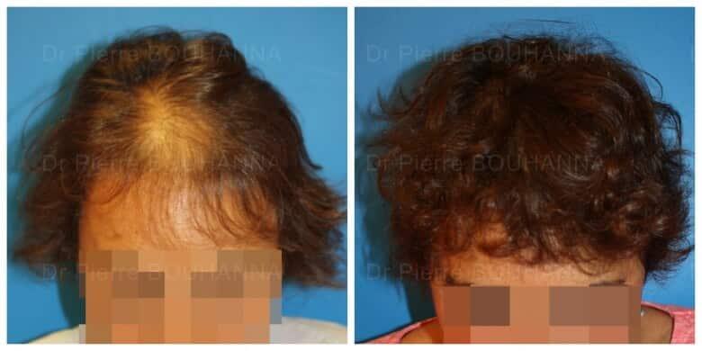 Résultat avant/après d'une greffe de cheveux chez une patiente du CMCC Paris