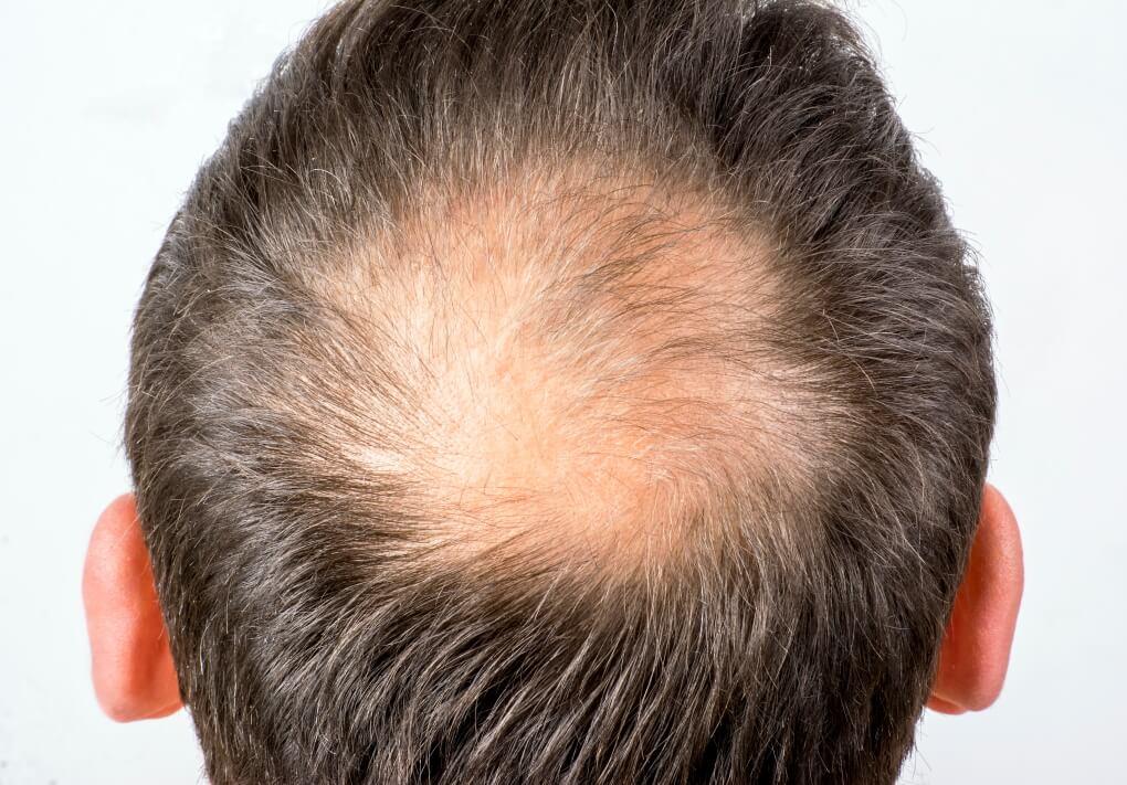 Homme souffrant d'une alopécie androgénétique